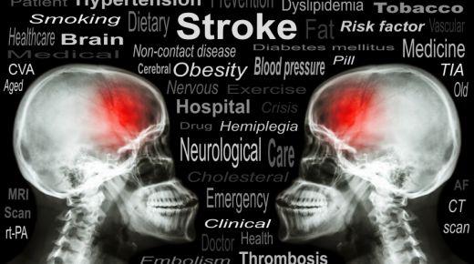 Adakah Kaitan antara Stroke dan Diabetes