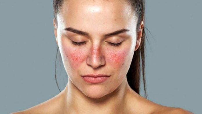 Apa itu Lupus dan Gejala yang Paling Mudah Dikenali