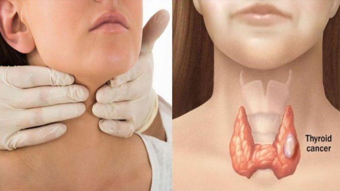 Kenali Jenis Kanker Tiroid dan Perawatannya