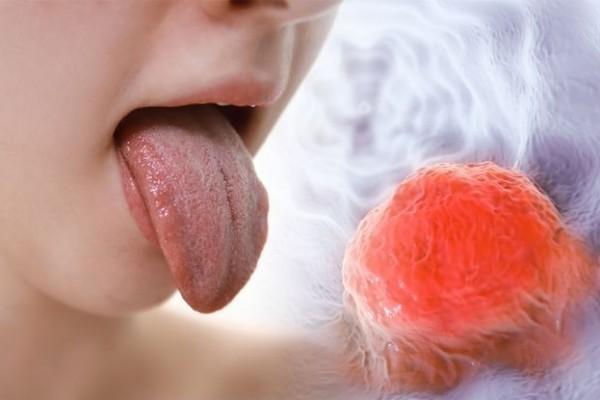 Mengenal Lebih dalam Kanker Lidah dan Cara Mencegahnya
