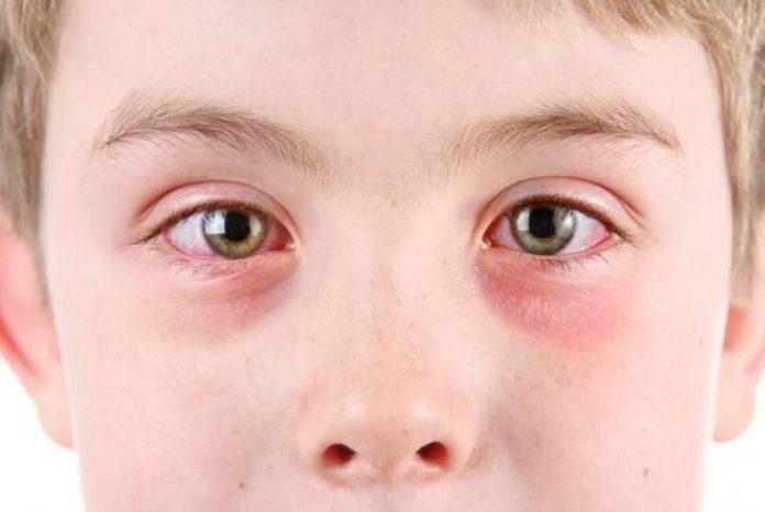 Segala Hal yang Perlu Anda Tahu tentang Stroke Mata