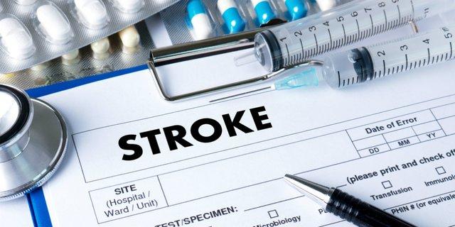 Sembuh dari Stroke dengan 5 Strategi Berikut