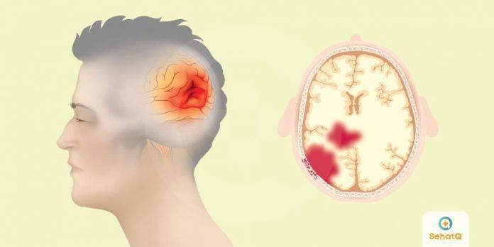 Stroke dan Cedera Otak serta Perawatannya