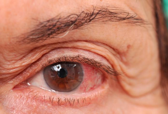 Tempat yang Tepat untuk Pengobatan Glaukoma di Pekanbaru