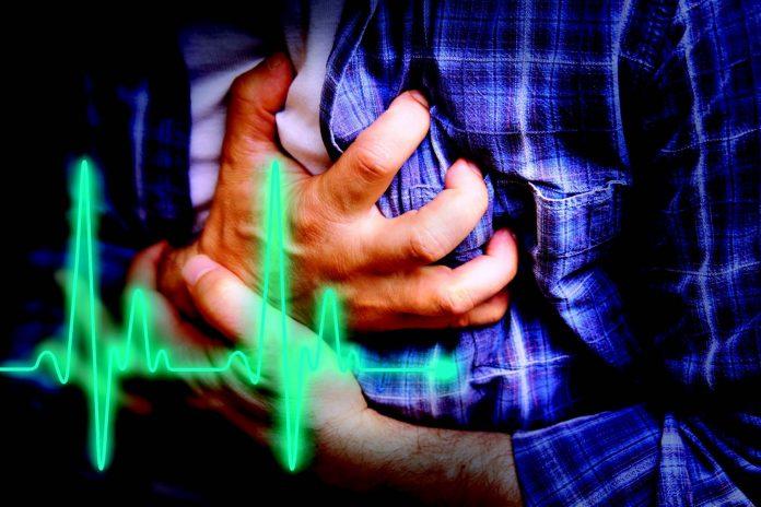 Tempat Pengobatan Jantung di Pekanbaru yang Harus Anda Coba