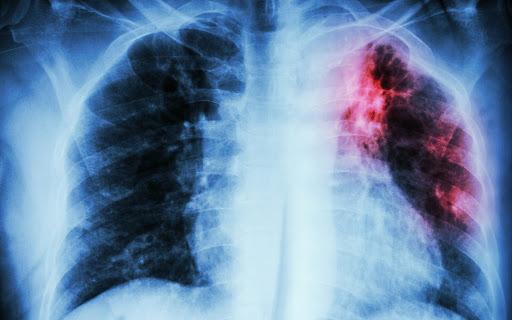 TBC adalah Sebuah Penyakit, Bagaimana Mengenalinya