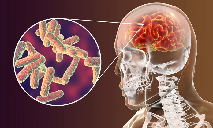 Tempat Pengobatan Infeksi Meningitis di Jakarta Paling Manjur