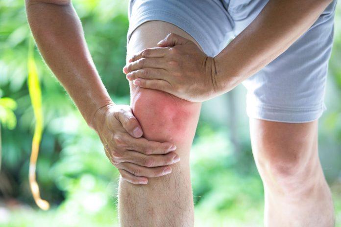 Tempat Pengobatan Osteoartritis (OA) di Pekanbaru Bisa Cepat Sembuh