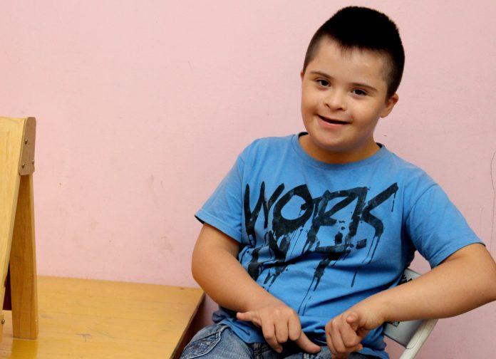 Tempat Pengobatan Down Syndrom di Bogor dengan Metode Paling Tepat