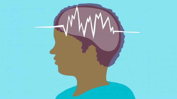 Tempat Pengobatan Epilepsi di Bogor yang Paling Efektif