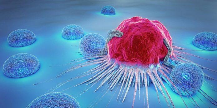 Tempat Pengobatan Kanker di Depok Terbaik dan Tanpa Operasi