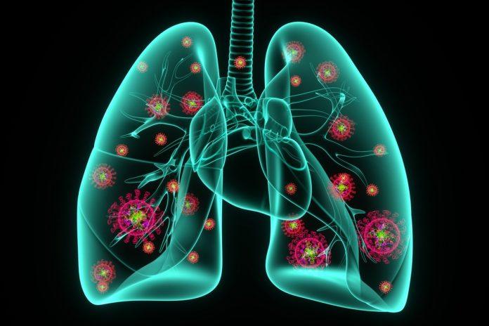 Tempat Pengobatan Pneumonia di Depok Terbaik tanpa Obat-Obatan