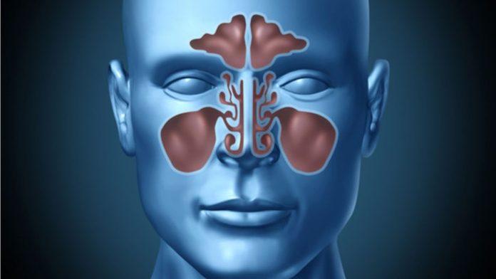 Tempat Pengobatan Sinusitis di Depok Manjur Tanpa Obat Kimia