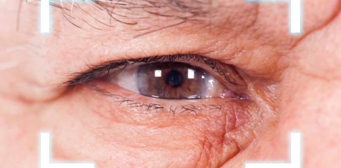 Tempat Pengobatan Glaukoma di Tangerang dan Palembang Tanpa Obat Kimia
