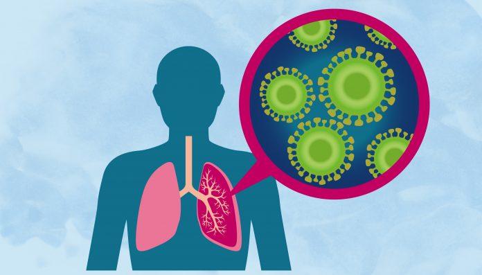 Tempat Pengobatan Pneumonia di Tangerang dan Palembang Paling Cepat Sembuh
