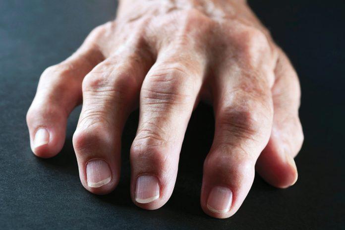 Tempat Pengobatan Rematik atau Rheumatoid Arthritis (RA) di Tangerang dan Palembang Terbaik