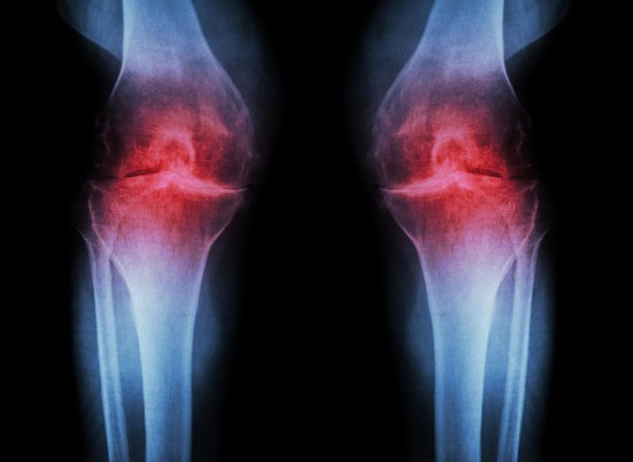 Tempat Pengobatan Osteoartritis (OA) di Pekanbaru dan Bekasi Terbaik dan Terpercaya