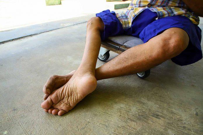 Tempat Pengobatan Polio di Pekanbaru dan Bekasi Alternatif Terbaik