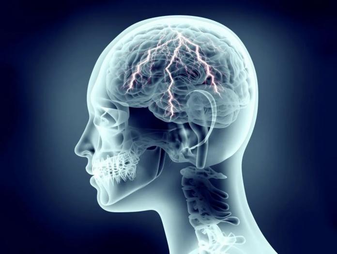Tempat Pengobatan Epilepsi di Pekanbaru dan Bekasi yang Aman dan Nyaman