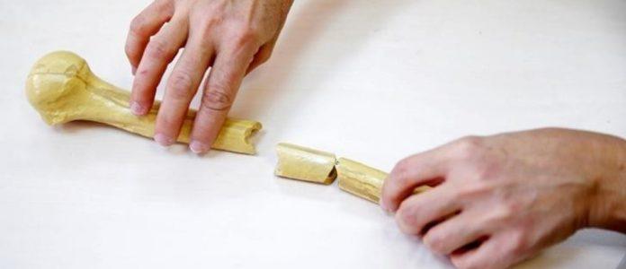 Terapi Patah Tulang di Pekanbaru dan Bekasi yang Populer dan Cepat Sembuh